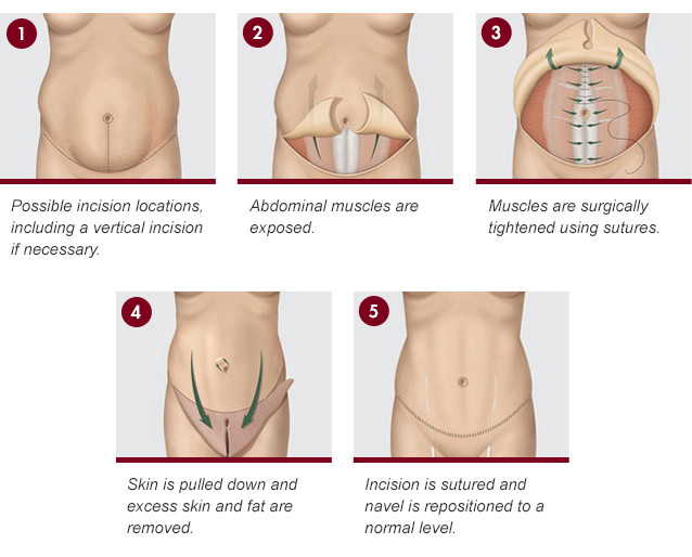 incision locations tummy tuck