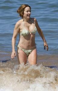 Patricia Heaton tummy tuck