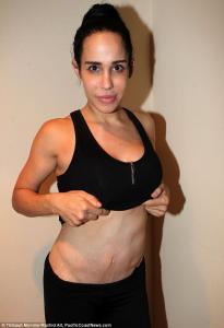 Nadya Suleman tummy tuck