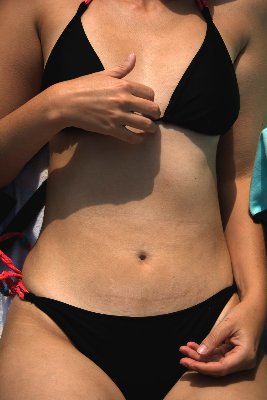 woman stomach black bikini