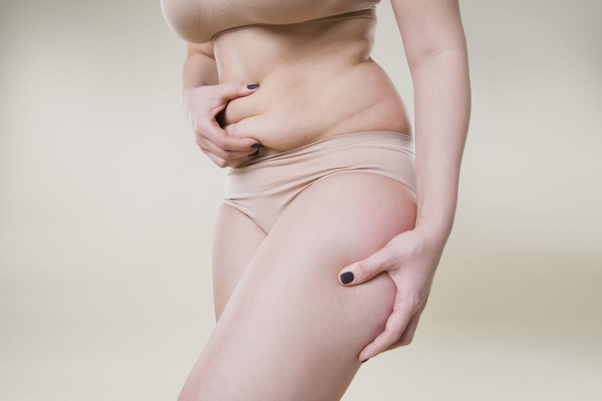 Woman holding fold of skin